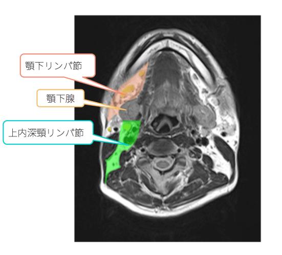 cervical-lympho-swelling-anatomy