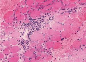 doc1-mitochondrial-encephalomyopathy-2