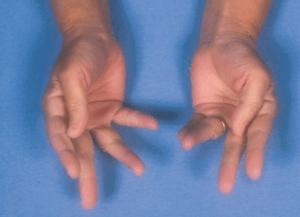 doc1-myotonic-dystrophy