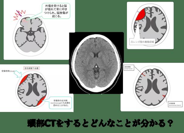 head CT diagnosis hemorrhage