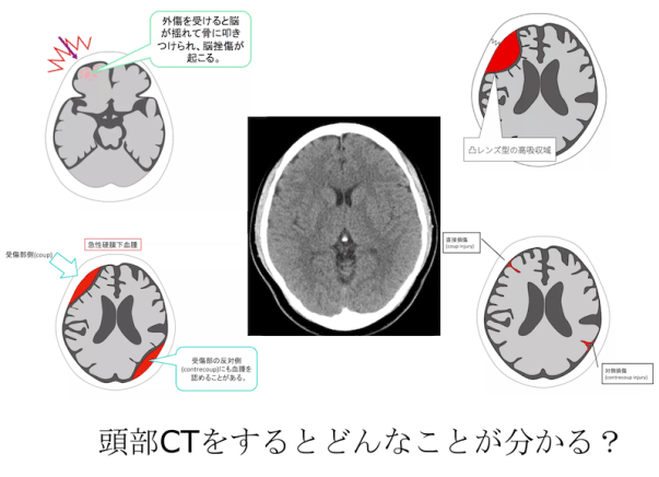 head CT diagnosis hemorrhage