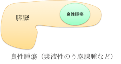 pancreatic benign tumor figure