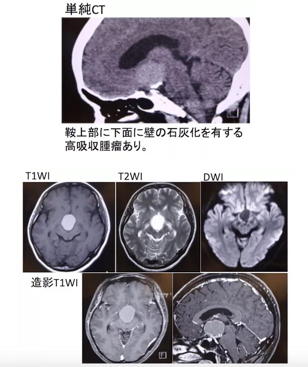 Craniopharyngioma 3