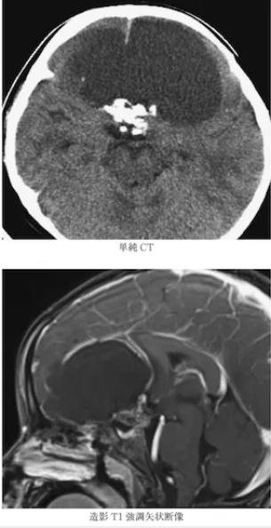 Craniopharyngioma 4
