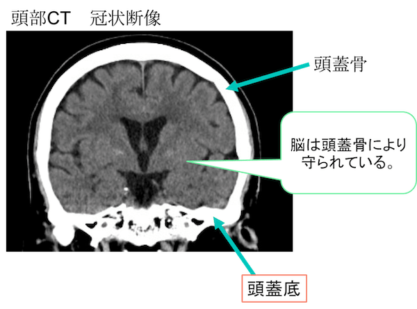 Basal skull CT findings
