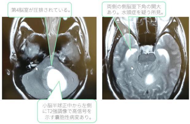 pilocystic-astrocytoma-mri-t2wi doc2
