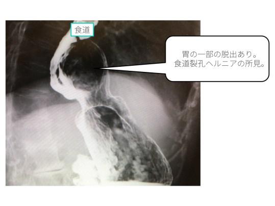esophageal-hiatal-hernia-001 doc