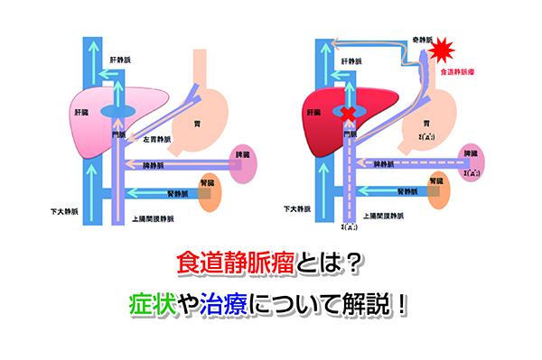 Esophageal varices Eye-catching image