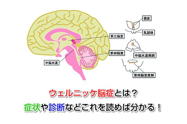Wernicke's encephalopathy Eye-catching image