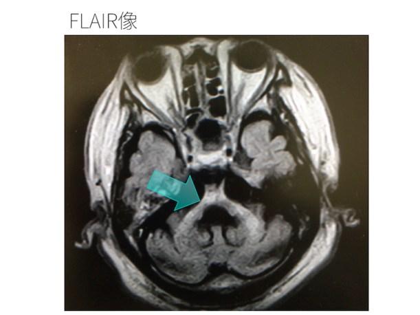 brain-atrophy-001