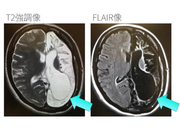 brain-atrophy-003
