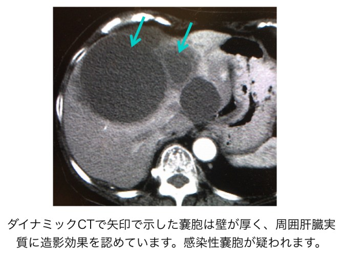 infection-hepatic-cyst-001