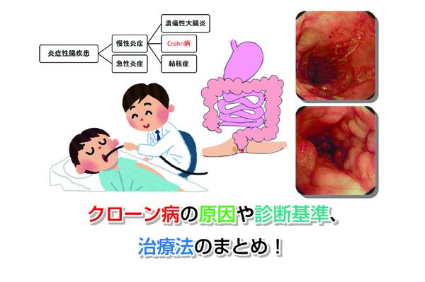 Crohn's disease Eye-catching image