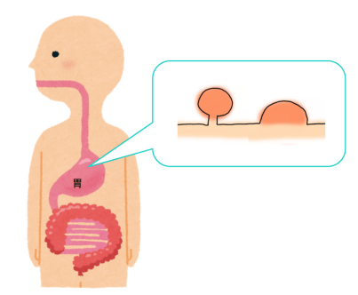 gastric-polyp