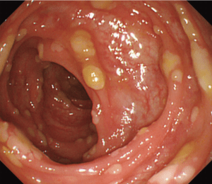 pseudomembranous-colitis
