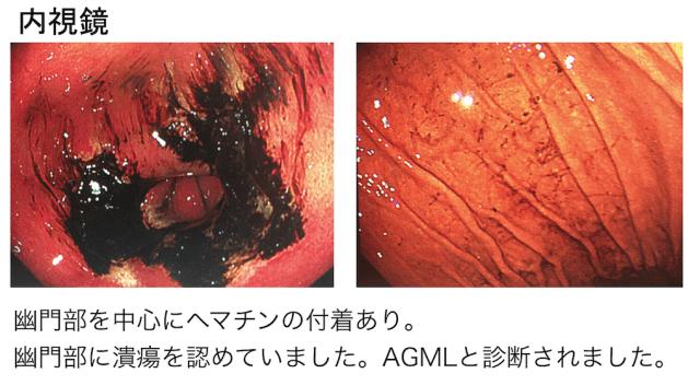 acute-gastric-mucosal-lesion