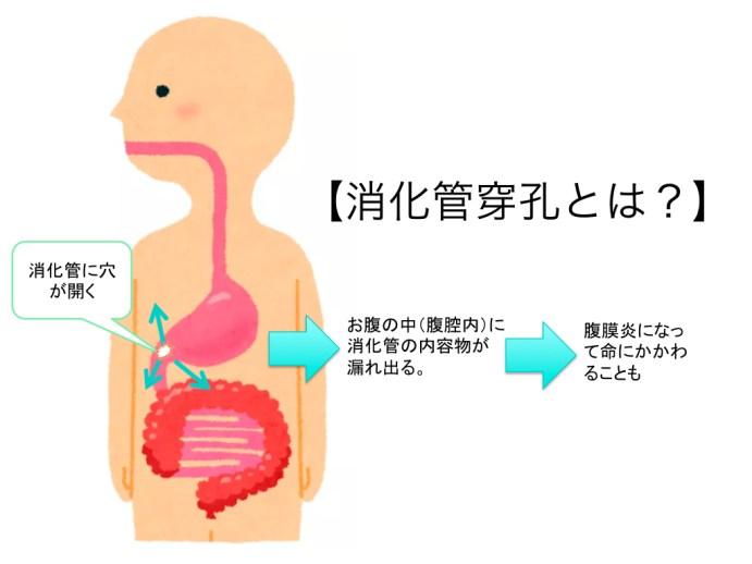 intestinal-perforation-001