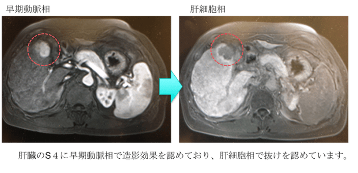 Alcoholic liver injury fatty liver EOB MRI findings