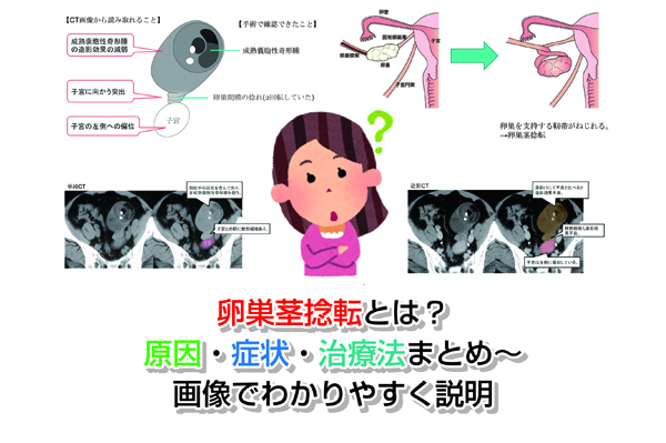 Ovary stem torsion Eye-catching image