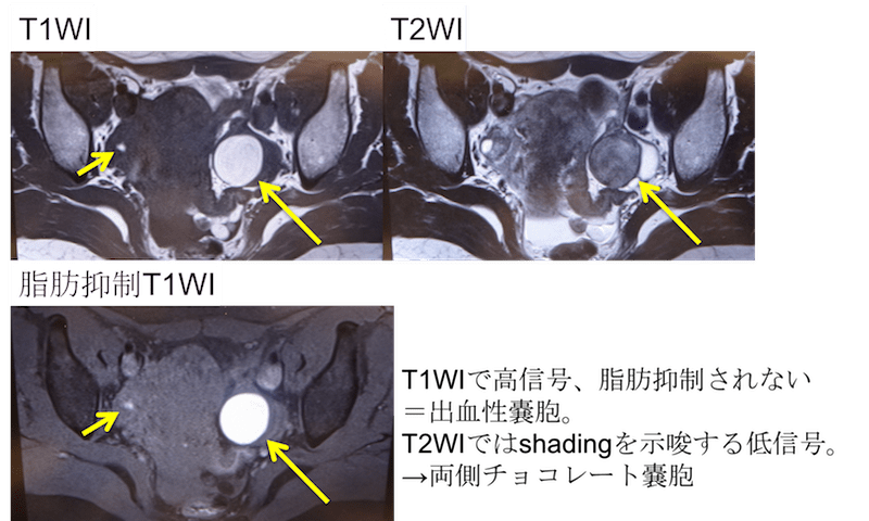 chocolate-cyst-of-the-ovary-mri-findings