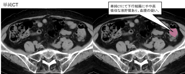 colonic-diverticular-hemorrhage-ct-findings1
