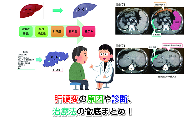Cirrhosis of the liver Eye-catching image