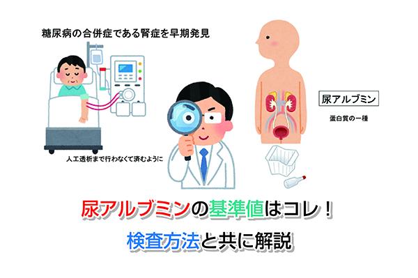 Urinary albumin Eye-catching image