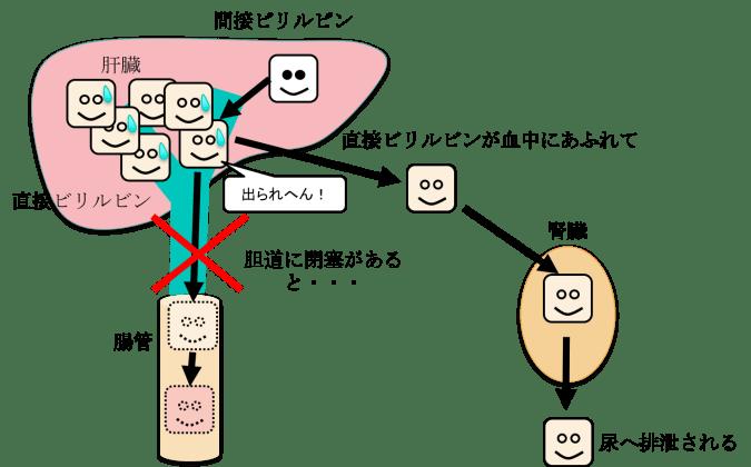 bilirubin figure1