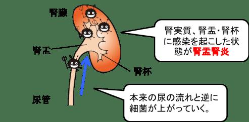 Pyelonephritis figure1