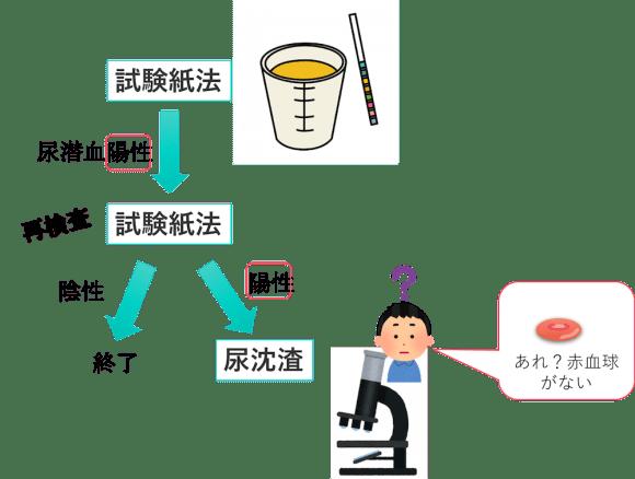urine myoglobin