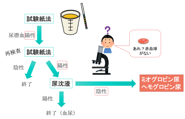 urine myoglobin3