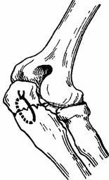 Остеосинтез большеберцовой кости пластиной. Лечебная физкультура при остеосинтезе большеберцовой кости