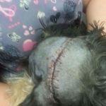 Drifter's stitches after surgery