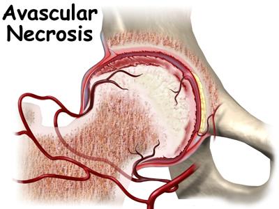 Avascular Necrosis (Aseptic Necrosis)