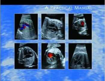 Fetal Cardiology Simplified PDF