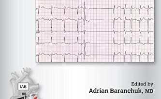 Interatrial Block and Supraventricular Arrhythmias PDF