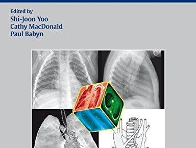Chest Radiographic Interpretation in Pediatric Cardiac Patients PDF
