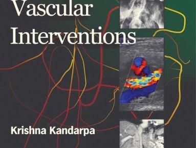Peripheral Vascular Interventions 1st Edition PDF