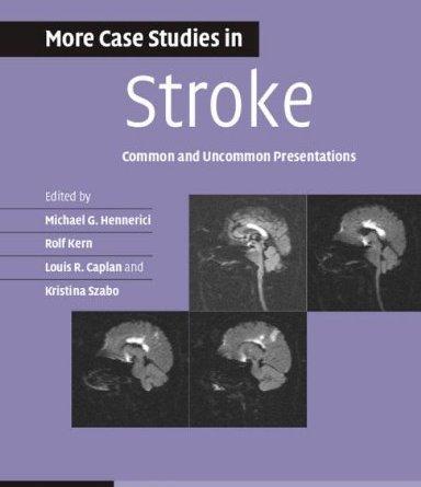 More Case Studies in Stroke PDF