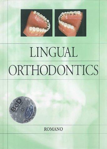 Lingual Orthodontics PDF