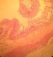 Normal Colon Histology