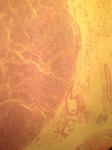 Normal Lymph Node Histology