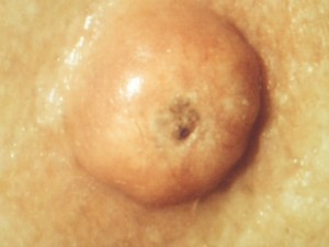Clinical Image of Keratoacanthoma, as viewed while on patient's body
