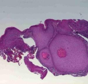 Pathology Image of Keratoacanthoma
