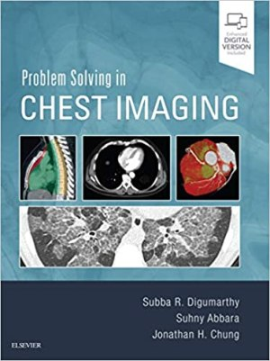 Problem Solving in Chest Imaging 1st Edition