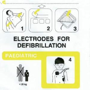ELECTRODO PEDIATRICO PARA DESFIBRILACION DG5000 FRED EASY SCHILLER – SH0-21-0000