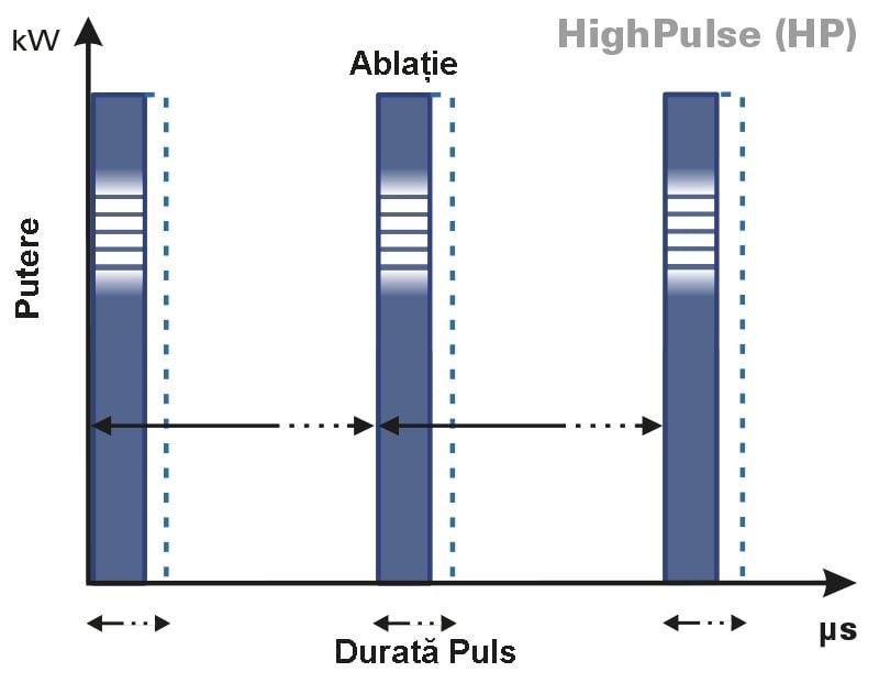 Grafic4-HIGHPULSE
