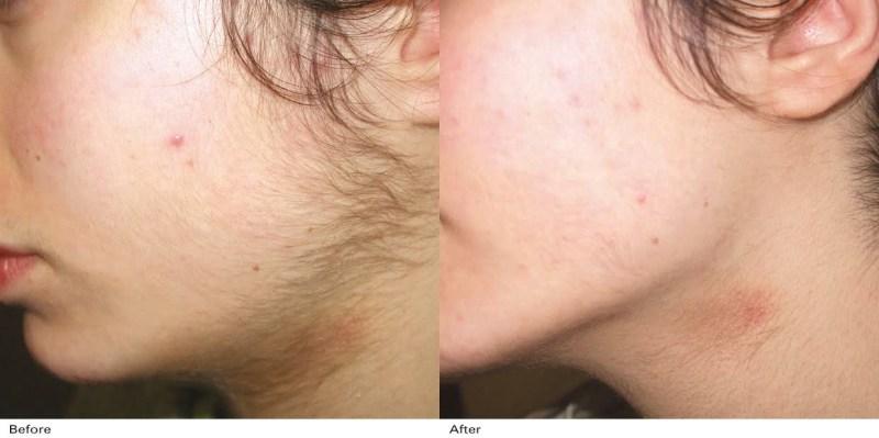 Aparate Laser Epilare Definitivă Alexandrite pentru Clinici și Saloane Înfrumusețare