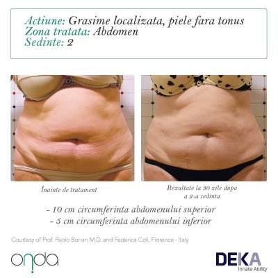 Before & After Onda Coolwaves