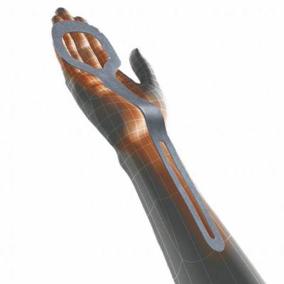 Digitus λειτουργικός νάρθηκας άκρας χειρός